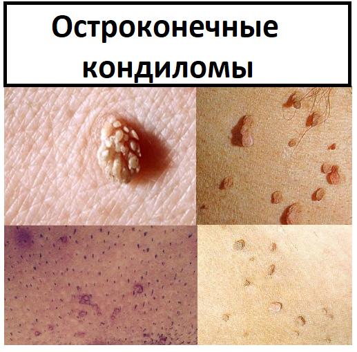 Остроконечные кондиломы или аногенитальные бородавки.