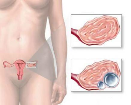 апоплексия яичника гинеколог киев