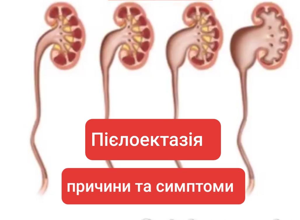 Пієлоектазія розширення ниркових мисочок причини та симптоми. Haborets clinic